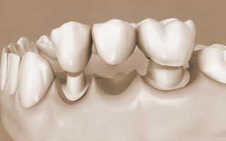Возврат налога за протезирование зубов